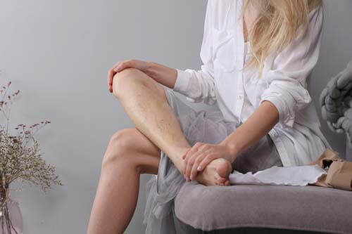 woman with varicose veins considering phlebectomy and sclerotherapy treatments